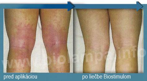 Atopický ekzém biolampa Biostimul